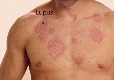 نشانه های بیماری لوپوس , بیماری لوپوس در کودکان