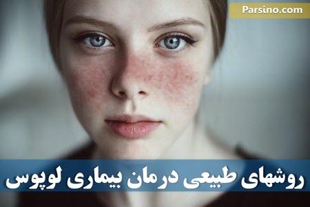 بیماری لوپوس چیست , علائم بیماری لوپوس
